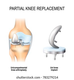 partial knee replacement. unicompartmental knee arthroplasty and uni knee implant