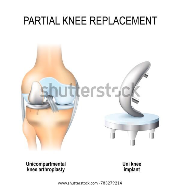 Partial Knee Replacement >> Partial Knee Replacement Unicompartmental Knee Arthroplasty