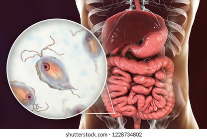 Pentatrichomonas hominis protozoan in human intestine, 3D illustration. Also known as Trichomonas hominis or T. intestinalis, colonizes large intestine, usually asymptomatic but may cause diarrhea