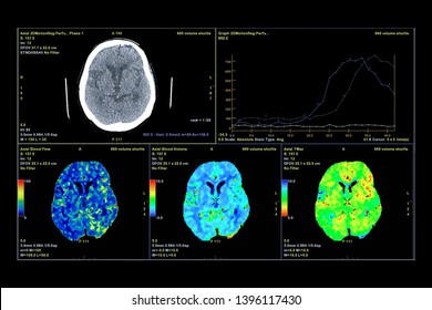 Perfusion CT scan of the brain 3d rendering image on the screen.