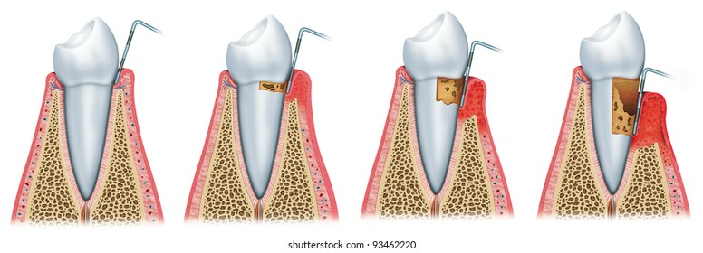 periodontal disease stages,