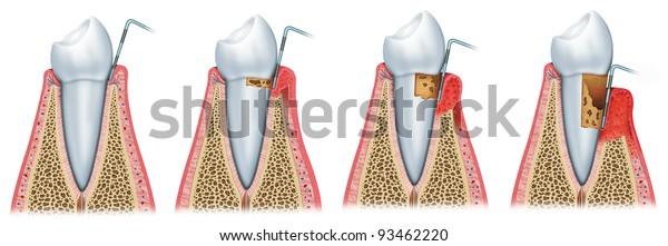 periodontale Krankheitsstadien,