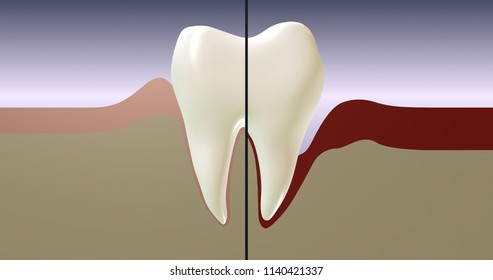 Periodontal disease. Tooth split in half. Сontrast of irradiation and inflamed gums. Dental Illustration.  Сross section 3d render image.