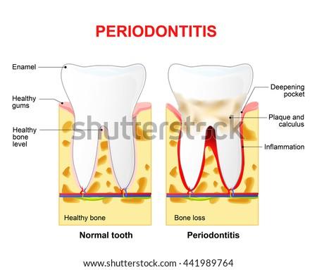 Periodontitis Inflammatory Diseases Affecting Periodontium Tissues ...