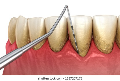 Periodontitis testing, gum recession process. Medically accurate 3D illustration