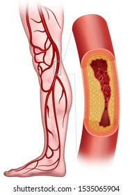 Peripheral arterial disease, Illustration of a leg in which the femoral artery is clogged with the plaques that accumulate on the walls, these supply blood to arms and legs.