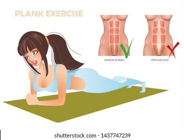 the plank exercise can be impossible when the divergence of the abdominal muscles diastasis of the girl sport