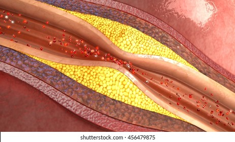 Plaque in blood vessels 3d illustration