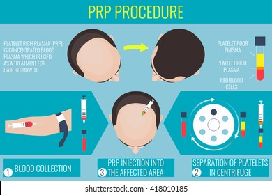 Platelet rich plasma injection. PRP therapy process. Male alopecia treatment infographics. Meso therapy and hair growth stimulation.