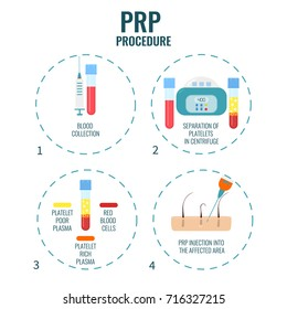 Platelet rich plasma procedure stages. PRP hair loss treatment steps. Alopecia infographic medical design template for transplantation clinics and diagnostic centers.