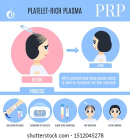 Platelet-rich plasma female hair loss treatment infographics. Stages of PRP procedure in women. Alopecia medical design template for transplantation clinics. Illustration in cartoon style.