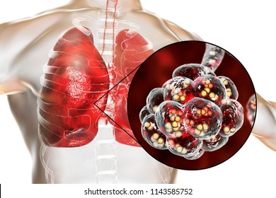 Pneumococcal pneumonia, medical concept. 3D illustration showing bacteria Streptococcus pneumoniae inside alveoli of the lung