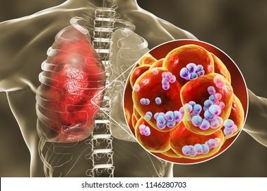 Pneumococcal pneumonia, medical concept. 3D illustration showing bacteria Streptococcus pneumoniae inside alveoli of the lung