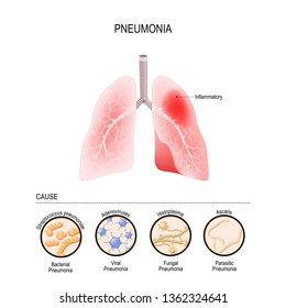 Pneumonia is caused by infection with viruses, bacteria, fungi and other microorganisms (for example, ascaris). closeup lungs, and bronchioles. human respiratory system. illustration for medical use