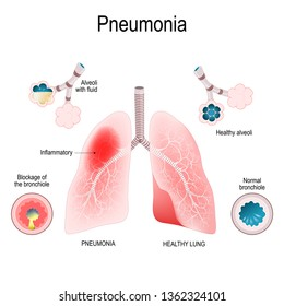 pneumonia symptoms  closeup lungs, bronchioles and alveoli  difference and  comparison of healthy lungs