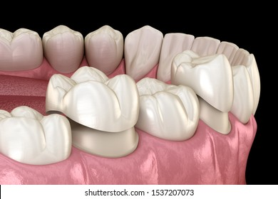 Porcelain crowns placement over premolar and molar teeth. . Medically accurate 3D illustration
