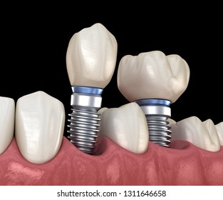 Premolar and Molar tooth crown installation over implant abutments. Medically accurate 3D illustration of human teeth and dentures concept