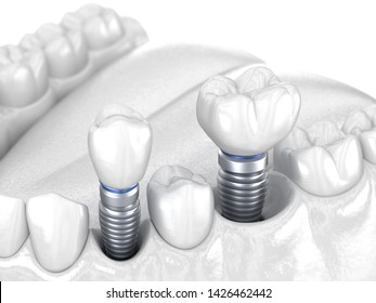 Premolar and Molar tooth crown installation over implant - white concept. 3D illustration of human teeth and dentures