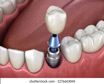 Premolar tooth crown installation over implant abutment. Medically accurate 3D illustration of human teeth and dentures concept