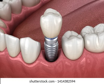 Premolar tooth recovery with implant. Medically accurate 3D illustration of human teeth and dentures concept
