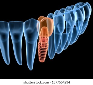 Premolar tooth recovery with implant, x-ray view. Medically accurate 3D illustration of human teeth and dentures concept