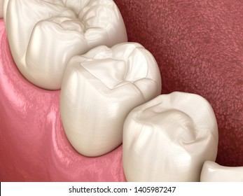 Premolar tooth restoration with filling. Medically accurate tooth 3D illustration.