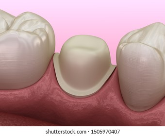 Preparated premolar tooth for dental metal-ceramic crown placement. Medically accurate 3D illustration
