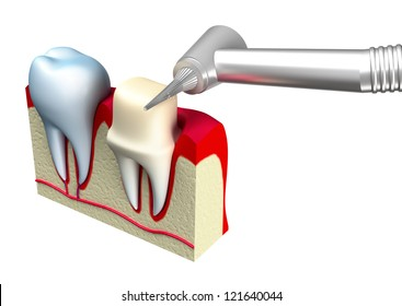 Preparation of the tooth crown for prosthetics