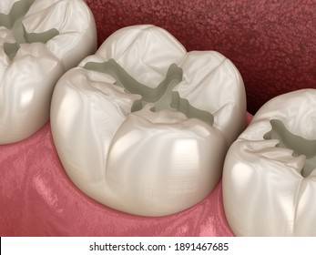 Prepareted Molar Fissure for fillings placement, Medically accurate 3D illustration of dental concept