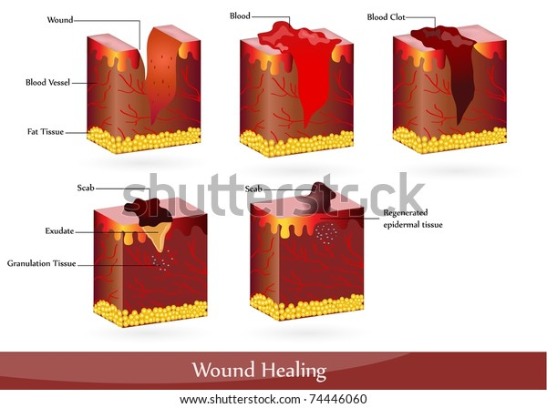 Process Wound Healing Illustration Showing Skin Stock Illustration 74446060 It really depends on individual chemistry and whether they have a heavy or light period, wysocki. https www shutterstock com image illustration process wound healing illustration showing skin 74446060