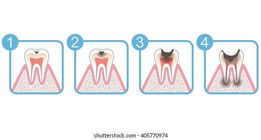 Progression of tooth decay