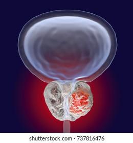 Prostate cancer, 3D illustration showing presence of tumor inside prostate gland which compresses urethra