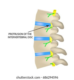 Protrusion of the intervertebral disc. illustration on isolated background.
