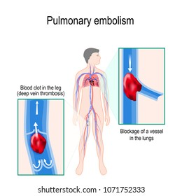 Pulmonary embolism. Human silhouette with highlighted circulatory system. Close-up: Blood clot in the leg (deep vein thrombosis), and Blockage of a vessel in the lungs