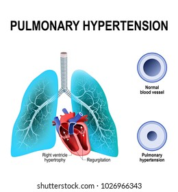 Pulmonary hypertension is an increased blood pressure within the arteries of the lungs. Cross section of the Normal, and narrowing of blood vessels.