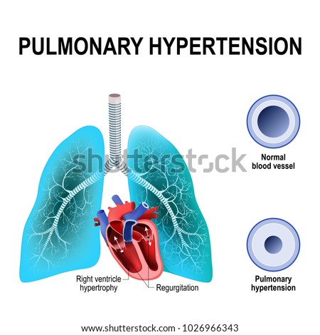 Pulmonary Hypertension Increased Blood Pressure Within Stock