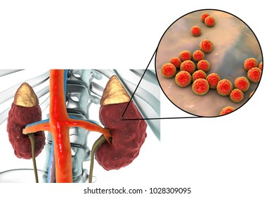 Pyelonephritis, medical concept, and close-up view of bacteria Enterococcus, the common causative agent of kidney infection, 3D illustration