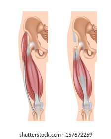 Quadriceps muscles, superficial muscles on the left and deep muscles on the right.