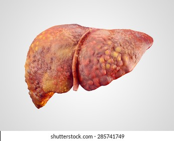 Realistic illustration of cirrhosis of human liver isolated on white