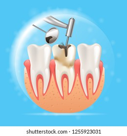 Realistic Illustration Cleaning Caries 3d Vector. Image Dental Procedure for Cleaning and Removal Caries by Dental Drill. Treatment Diseased Tooth. Tool Dentistry. Isolated on Blue Background