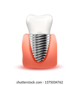 Realistic tooth implant with metallic screw in pink gum on white
