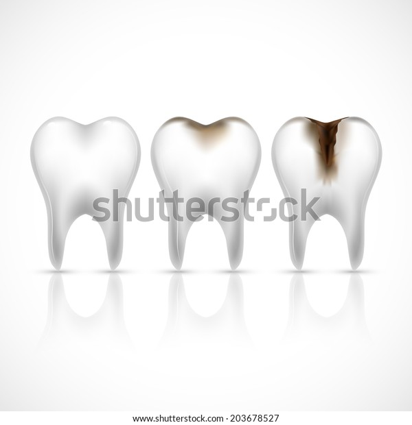 Realistic white and caries broken teeth set  illustration