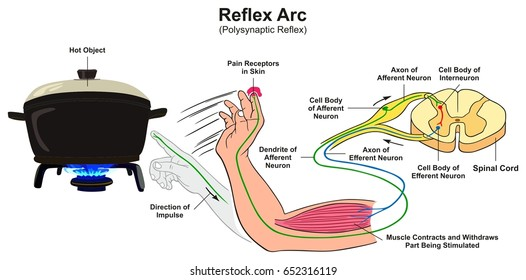 Reflex Arc infographic diagram with example of polysynaptic reflex human hand touching hot object pain receptors and direction of impulse for medical science education