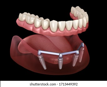 Removable Mandibular prosthesis with gum All on 4 system supported by implants. Medically accurate 3D illustration of human teeth and dentures
