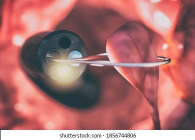 Removal of the polyp from the intestinal wall with a colonoscope. Medical device to check the condition of the intestines and detect gastrointestinal diseases. medical diagnosis. 3d illustration