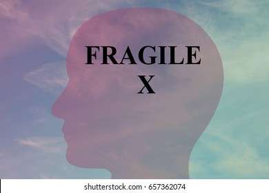 "Render illustration of ""FRAGILE X"" title on head silhouette, with cloudy sky as a background."