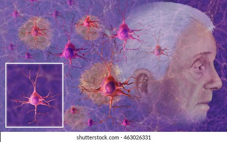 representative of Alzheimer illustration, can be seen in neurons of fibrillary tangles degenerative state.