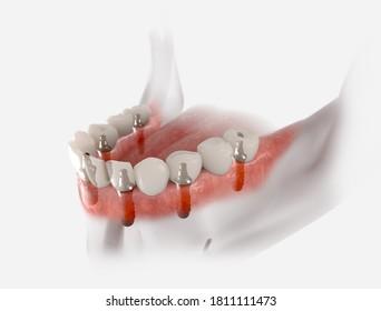 Restoration of mandible with 6 implants. 3D illustration of dental prosthesis on white background.
