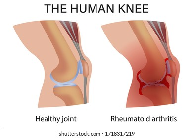 Rheumatoid arthritis. Pain in the joint. degenerative joint disease. The cartilage becomes worn out. This leads to inflammation, swelling, and joint pain.