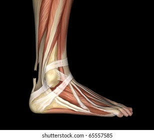 Ruptured Achilles Tendon